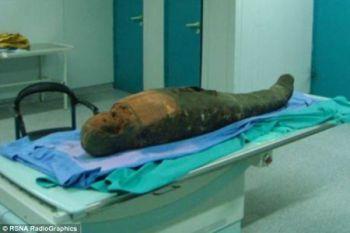 Ученые обнаружили в черепе мумии инструмент для удаления мозга